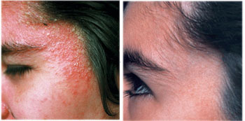treat Eczema naturally